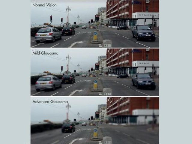 Specsavers has shared this image of what it can be like driving with Glaucoma